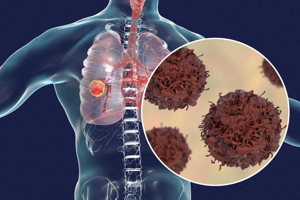 Magyarországon a férfiak rákos halálozásában az első, a nőknél a második helyet foglalja el a tüdőrák. A betegek 90-95%-a aktív dohányos.