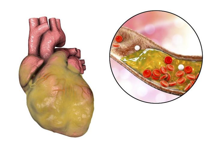 Hét étel fogyasztásával megelőzhető a szívinfarktus