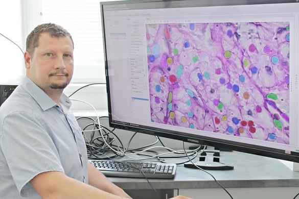 A rákkutatást is forradalmasítja a mesterséges intelligencia