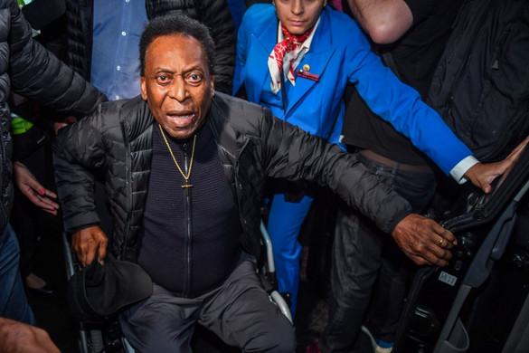 Nehezen mozog, és már a házát sem szívesen hagyja el Pelé